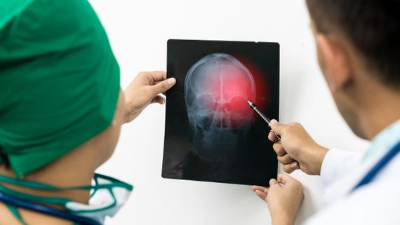 Brain_Injury